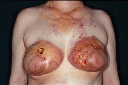 Duly answer Breast reconstruction necrosis