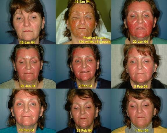 Led Light Treatment Clinical Pre Treatment For Surgery
