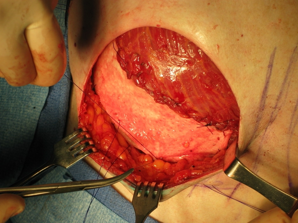 Breast reconstruction with expanders and implants