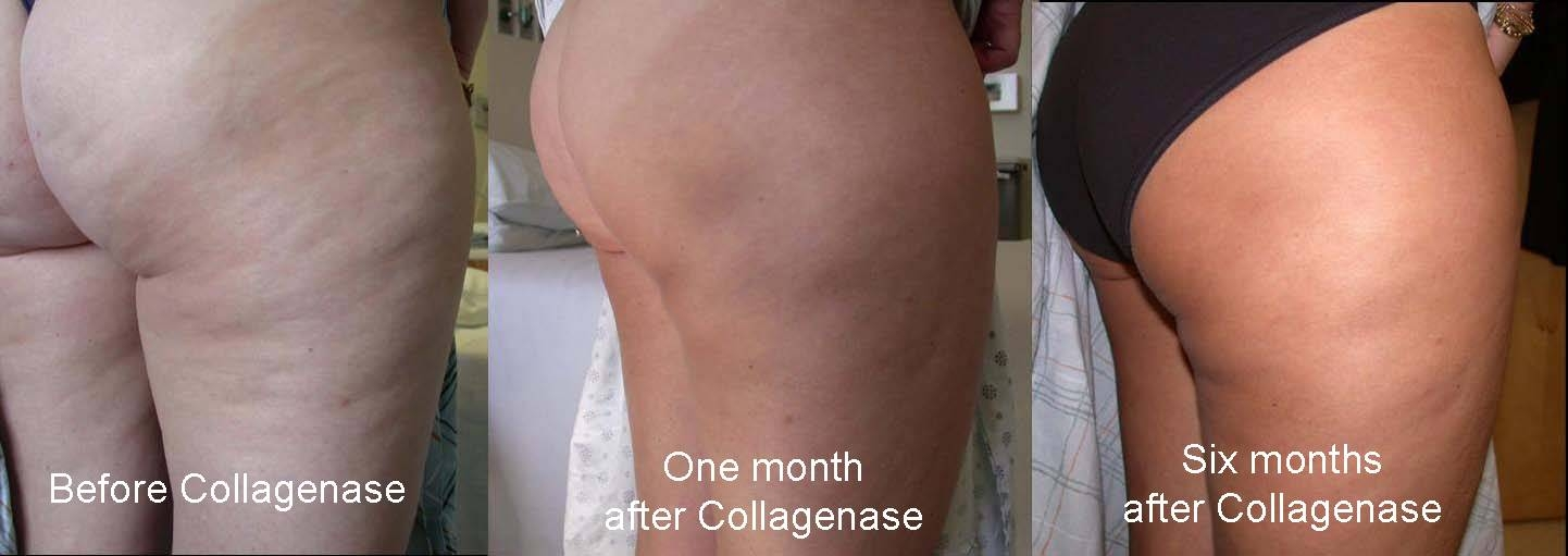 Cellulite cream before and after