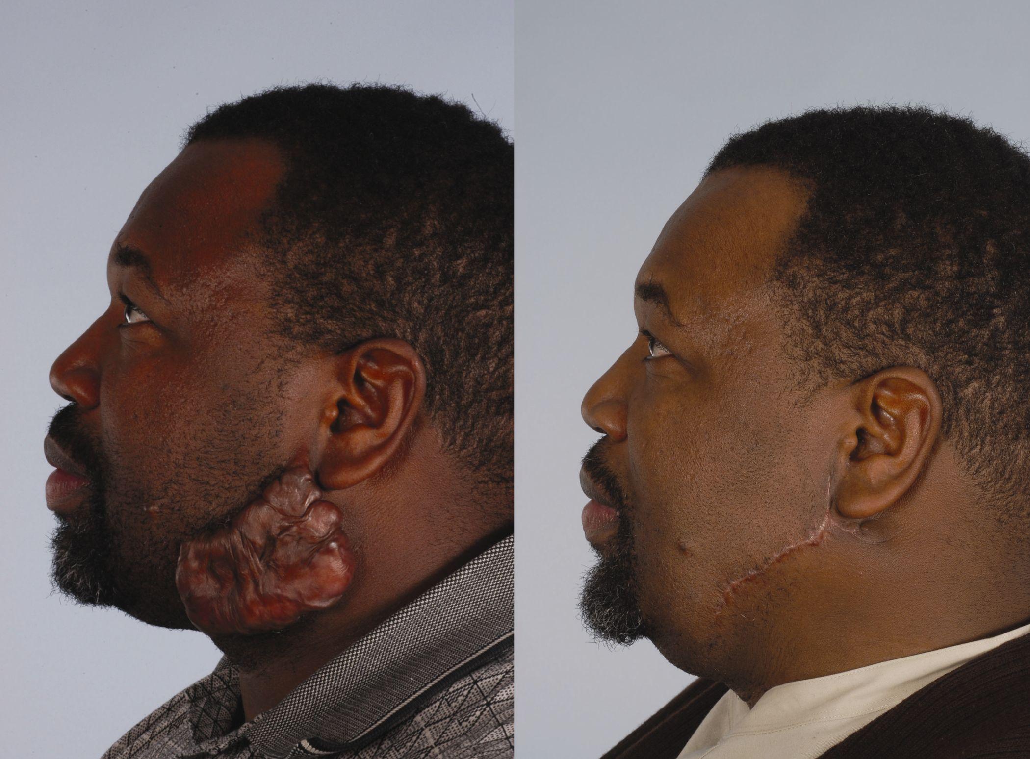 triamcinolone for keloid scars