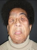 Facial transplantation for plexiform neurofibroma | 153 x 205 jpeg 5kB