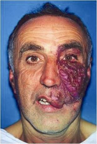 Facial venous malformation