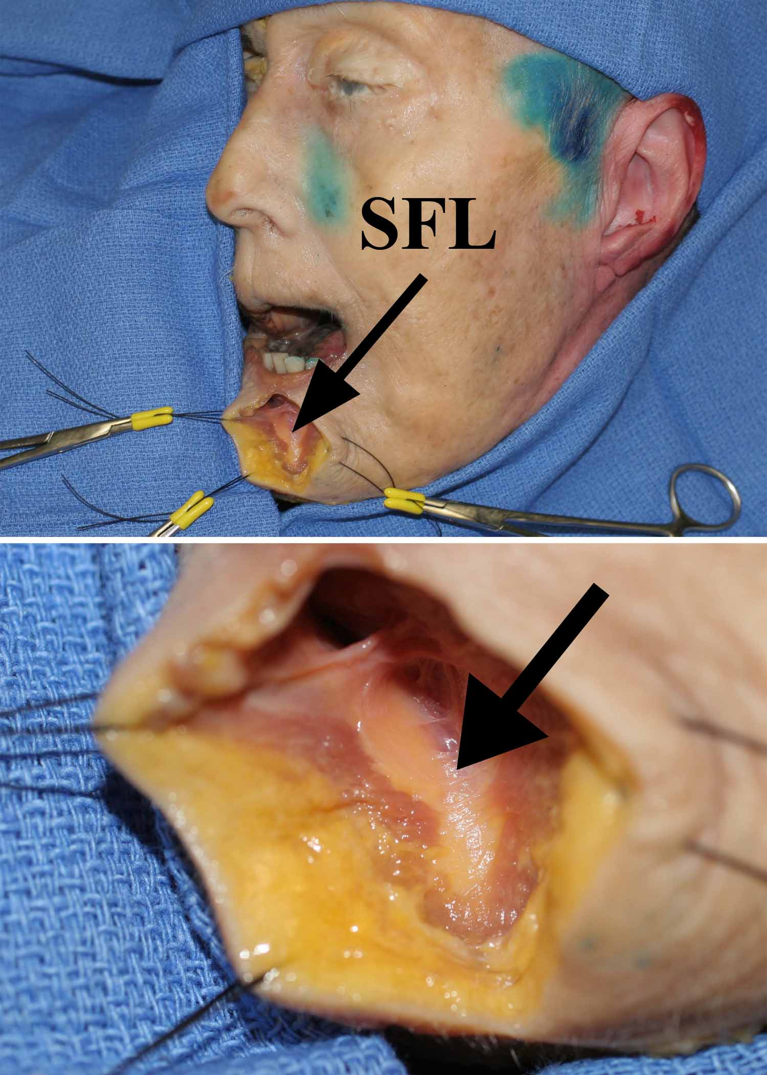 The Sub Orbicularis Oris Fat Of The Upper And Lower Lips