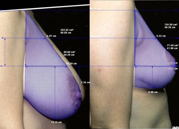 Inverted-T, inferior pedicle breast reduction. 22 mos.